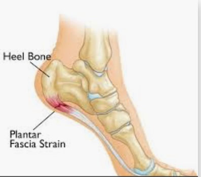 Heel Pain Karr Foot Leg Center
